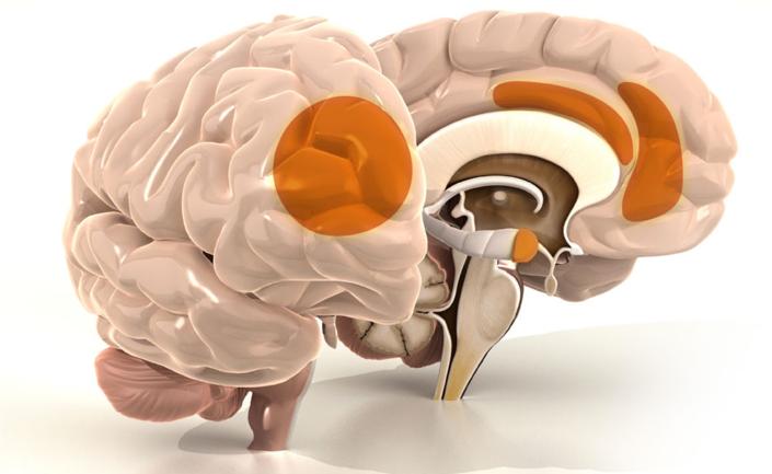 misofonia-amigdala