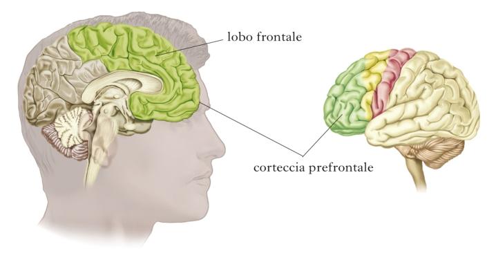 misofonia-corteccia-uditiva-e-prefrontale