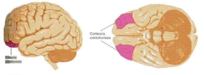 misofonia-e-corteccia-orbitofrontale
